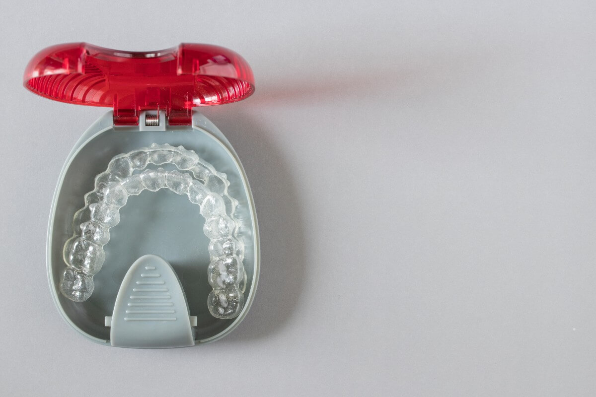 tipos de retenedores que hay al terminar la ortodoncia