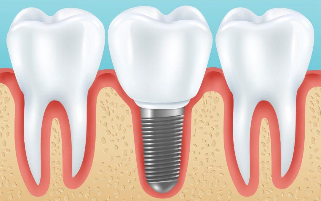 ¿De qué depende el precio de los implantes dentales en Carmona?
