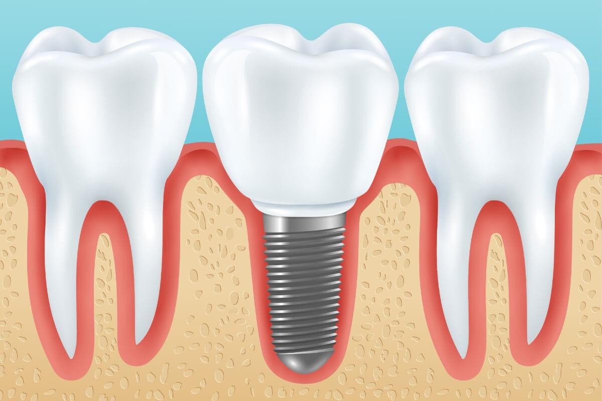 Precio de implantes dentales en carmona