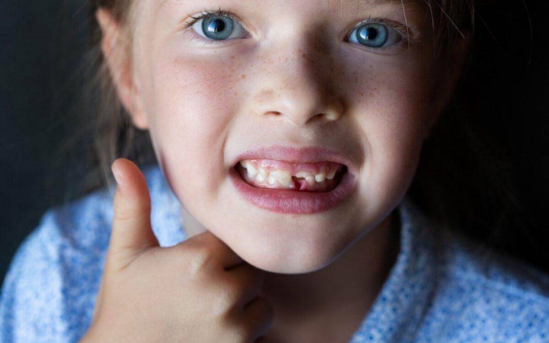 ¿Qué hacer si no se caen los dientes de leche?