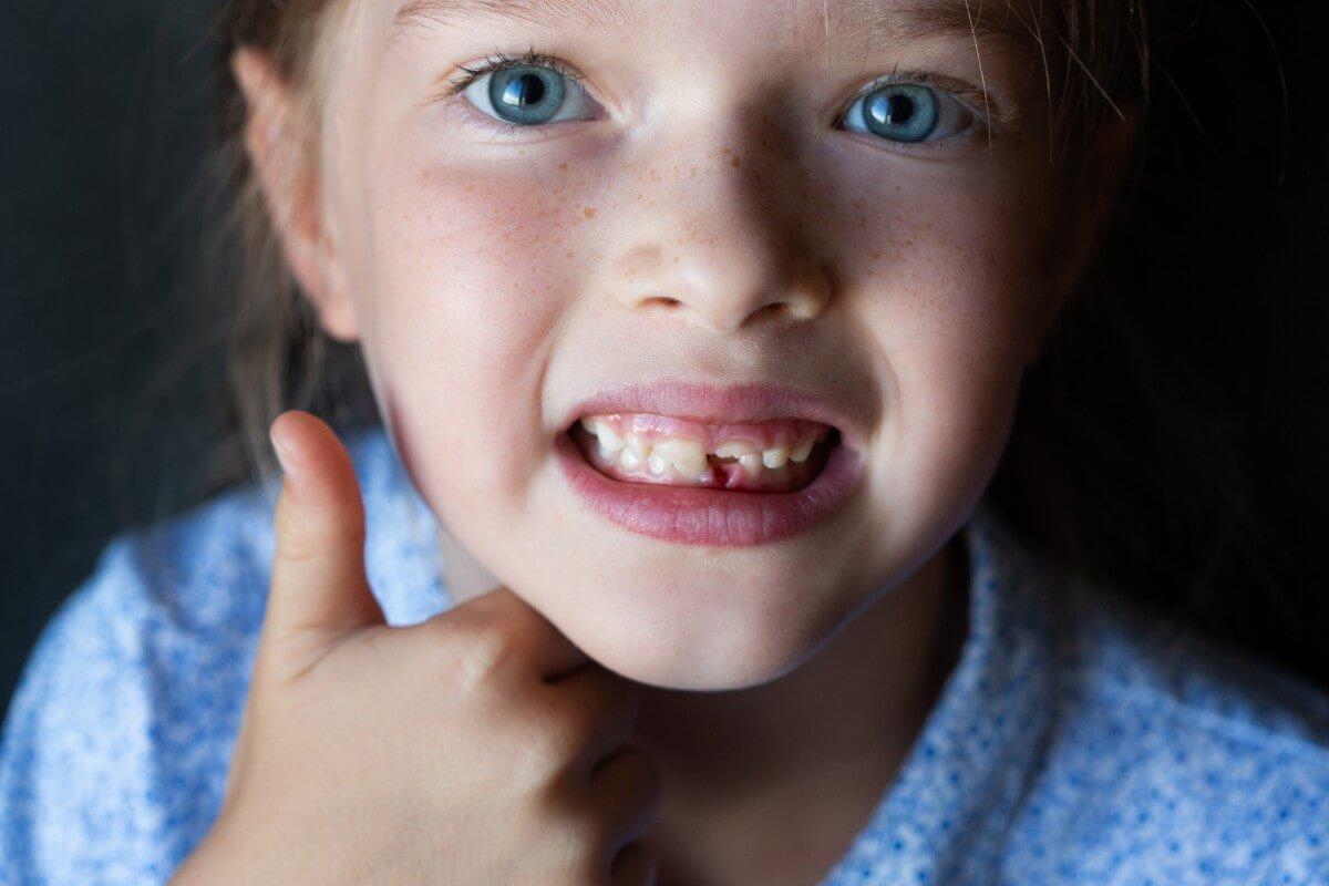 Qué hacer si no se caen los dientes de leche