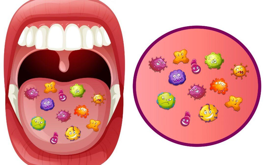Enfermedades producidas por la placa bacteriana