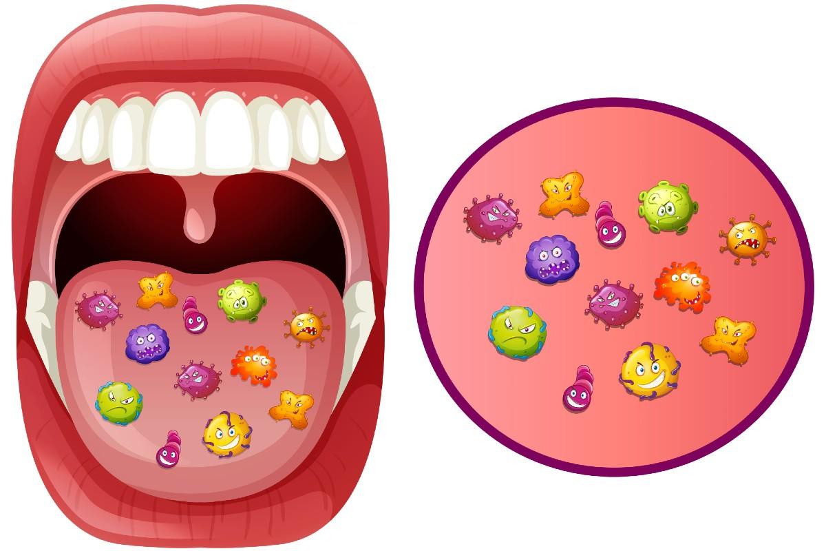Enfermedades producidas por placa bacteriana