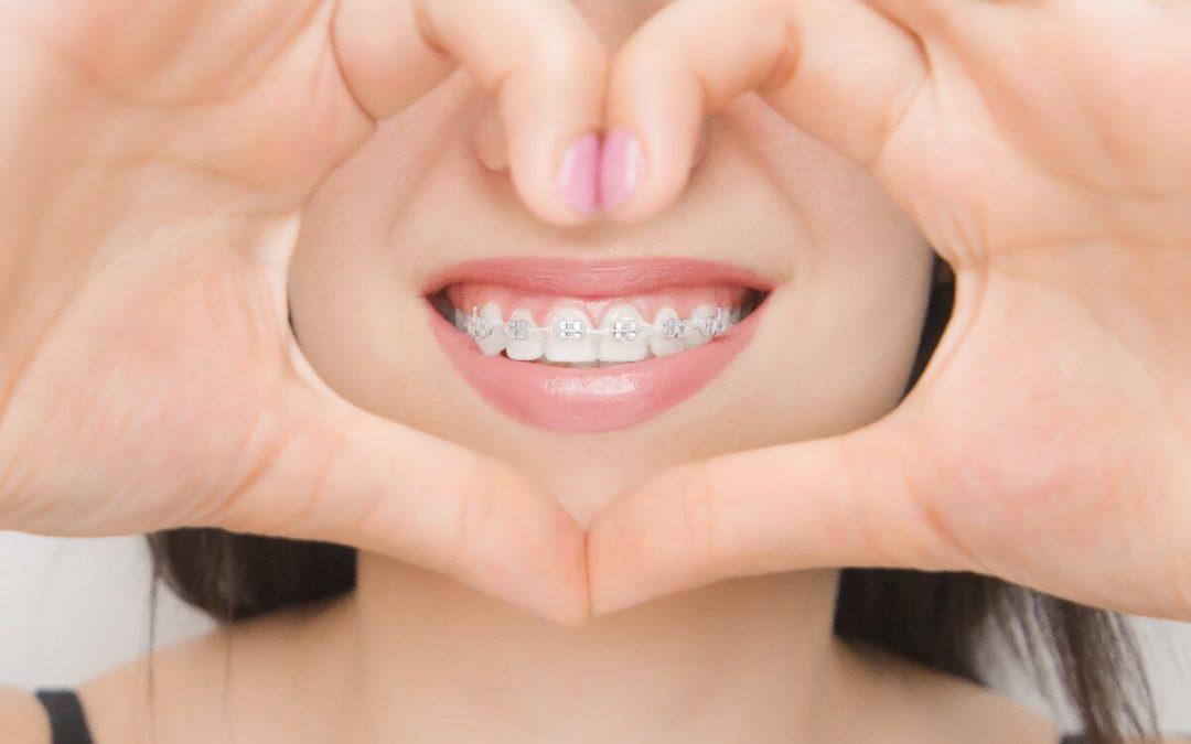 5 claves para elegir al mejor ortodoncista de Carmona