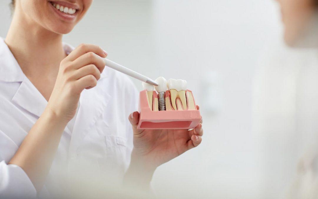En qué casos no es posible la colocación de implantes dentales