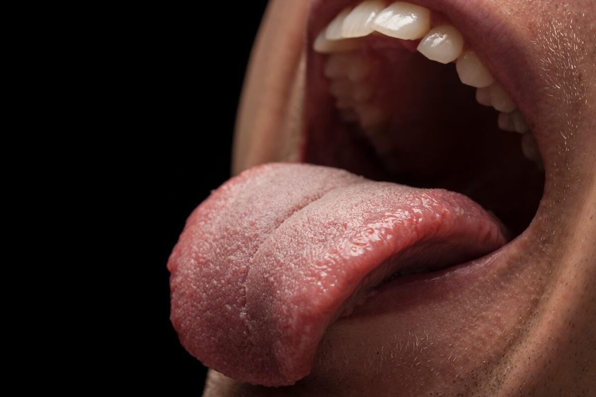 Qué produce la sequedad de boca